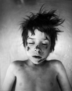 Boy hit by car, 1972-74